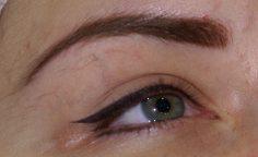 В Алдане в результате косметологической процедуры женщина ослепла на один глаз